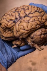 A donated brain at Sydney University.