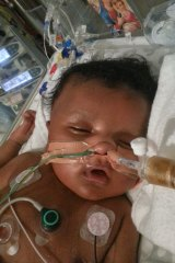 Caleb was in a coma for almost two months and lost 90 per cent of his intestines after he was born with a twisted bowel.