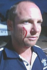 Pilot Josh Liddle was left covered in blood when a bat smashed into his cockpit.