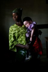 A mother and her albino child in the documentary <i>In the Shadow of the Sun</i>.