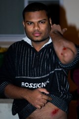 An Indian male displays his injuries after a group of males attacked him as tensions boiled over in Harris Park last night.