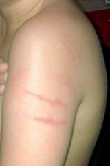 A young boy who was physically restrained while in care.