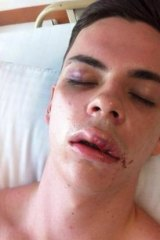 Bashed: Jack Hansen-Bartel in the aftermath of the attack.