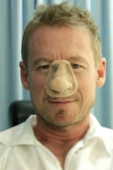 Step one: The nose prosthetic is placed on Richard Roxburgh's face.