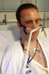 Clinton Maynard 2UE news content director after accident with chlorine chemical he was adding to his swimming pool. Photo: Supplied