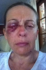 """""""I had to sit down, trying not to faint."""": Sydney woman Angela suffered a serious eye injury after being attacked by two dogs."""