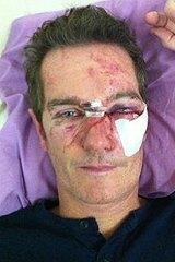 King hit victim Cian Barry.