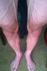 The striking image of Polish cyclist Bartosz Huzarski's legs.