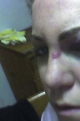 """""""There's no authority"""" … Julie-Anne Gill was brutally bashed by a gang of five girls in Casino, NSW, in 2008."""