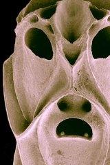 Bryozoa under the microscope.