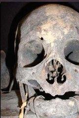Ancient skull ... a trophy to Filipino head hunters.