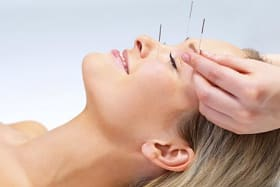Can acupuncture minimise wrinkles?