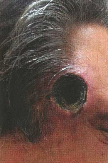 This is what happened to a man in Queensland who applied black salve to his head.
