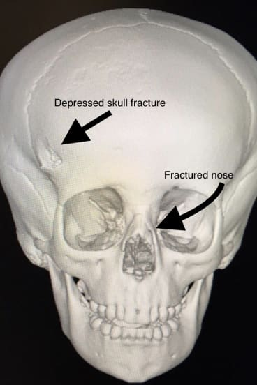 A 3D image of Charlie's skull after he was bitten by a dog.