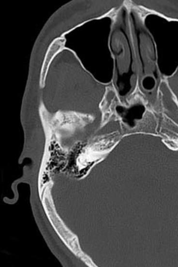 A CT scan shows the skull fracture where Mr Cramp's head hit the pavement.