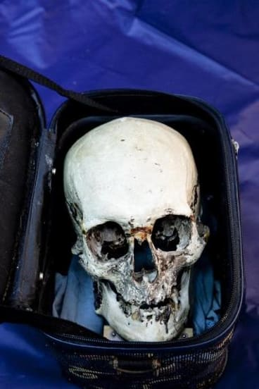 Heads up:  the skull at the centre of the investigation. It had gone missing for 30 years from 1979, and had once been thought to belong to Ned Kelly.