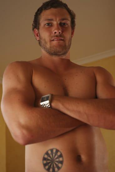 Type 1 diabetes sufferer Sam Reid has a dartboard tattoo to mock his insulin injecting.