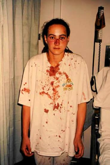 Long wait: almost 20 years after having her nose broken in an unlawful police raid, Corinna Horvath has won compensation from Victoria Police.