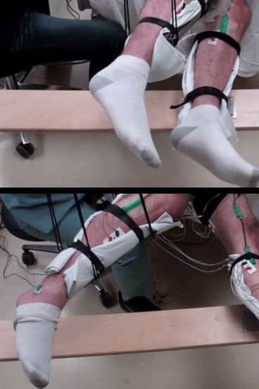 A 42-year-old man who was paralyzed after a wrestling injury was able to voluntarily move his legs thanks to neurostimulation, created by Professor Reggie Edgerton at UCLA.