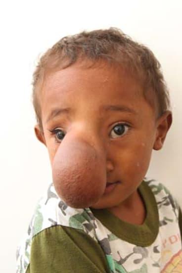 Martinho before the surgery.
