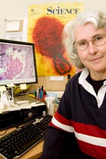 """""""This cell line has been going for about 60 years"""" ... CSIRO veterinary pathology specialist Deborah Middleton."""