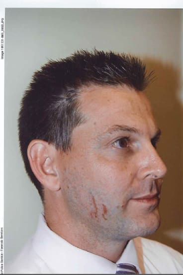 Scratches on Gerard Baden-Clay's face  provided crucial evidence during his murder trial.