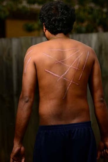 Tamil aslyum seeker 'Kumar' shows his wounds.