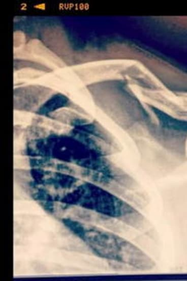 An X-ray showing  Ian Batterley's broken collarbone after his first-lap crash at last weekend's 24-hour mountain bike championships at Stromlo Forest Park.        brokenshoulder.jpg