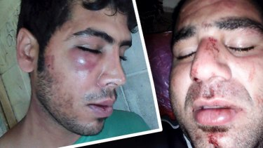 The injuries of two Iranian refugees, Mehdi (left) and Mohammad, allegedly bashed by local authorities on Manus Island.