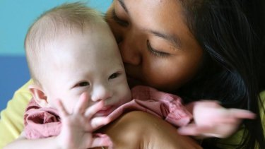 Pattaramon Chanbua, right, kisses her baby boy Gammy at a hospital in Chonburi province, Thailand.