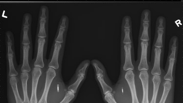 Three Square Market is offering all its employees the option to get a microchip implanted between the thumb and forefinger.