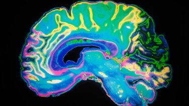 Early results are encouraging for a novel brain therapy to treat dystonia.