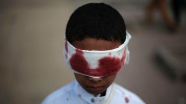 A boy with fake blood on his face and clothes to represent a victim participates in a protest against Saudi-led airstrikes in Sanaa, Yemen, Sunday, Nov. 27, 2016. (AP Photo/Hani Mohammed)