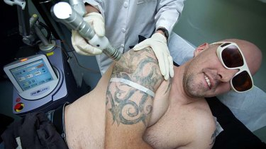 Conan Blake getting  at the tattoo removal clinic.