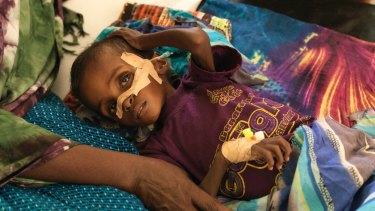 Niman Adan Gabush, 2, is a severe malnutrition case at Hargeisa Group Hospital.