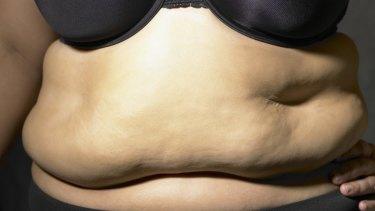 Big is beautiful: not according to Dr Sarah Burnett.