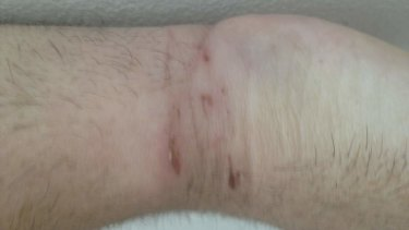 Mr Hutchinson's leg. He is due to appear in court on April 5.