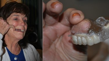 Doreen Wilkes shows her missing teeth and the temporary denture she claims was impossible to eat with.