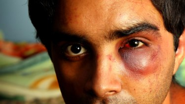 Indian student Sourabh Sharma was bashed and robbed by a racist gang on a train to Werribee.