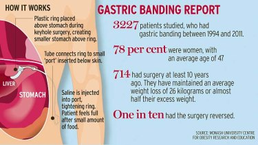 Lap Band Surgery Leads To Long Term Weight Loss Even After Hiccups