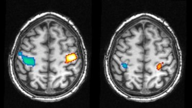 Brain scans showing activity in the motor cortex during the movement of the hands while awake (left) and during a dreamed movement (right).