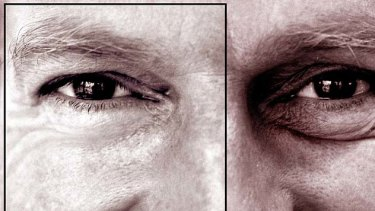Blepharoplasty - or eyelid surgery - is growing in popularity among newsreaders or men who do lots of public speaking.