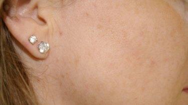 Wendy Reiner, after using her acne cream