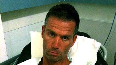 Broken back .... Matt Tilley in The Alfred hospital.