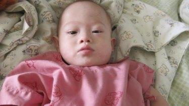 Baby Gammy in a Thai hospital on Sunday.