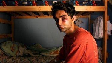 Fractured cheek ... a racist gang bashed and robbed 21-year-old Melbourne student Sourabh Sharma on a train.