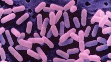 Listeria bacteria.