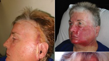 Skin Cancer Horror Costs Woman Her Face