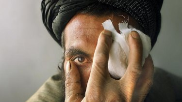 Fazal Muhammad is treated for an eye wound in Quetta, Pakistan. PICTURE: VINCENT LAFORET/NEW YORK TIMES