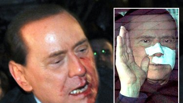 Silvio Berlusconi on the day of the assault and (inset) leaving hospital last week.